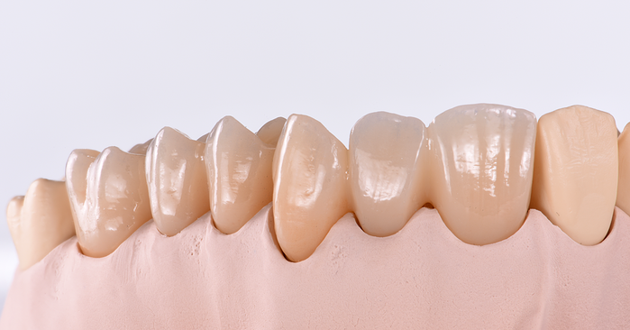 Zirconia - important considerations for infiltration and sintering