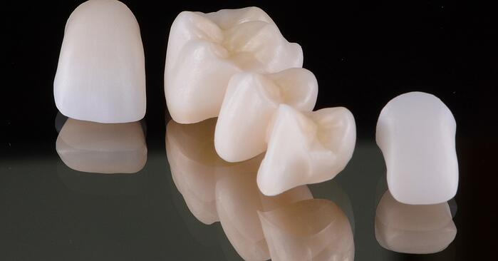 Challenges in prosthetic adhesive dentistry