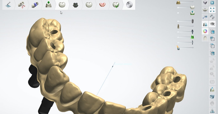 Dental System – Designing of a full arch implant bridge with gingiva