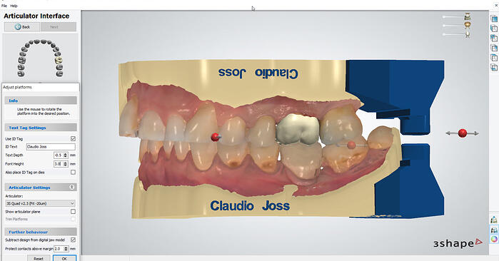 How to proceed - From intraoral scanning to the printed model