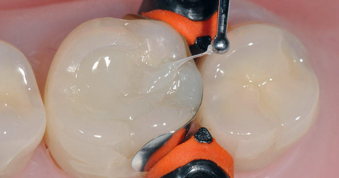 Pushing the limits of direct composite restorations