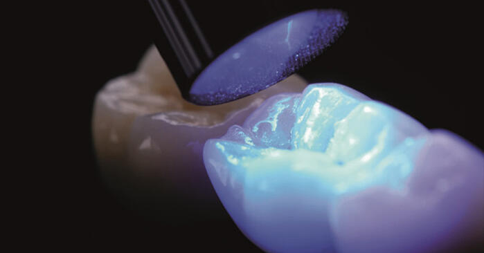 Shedding light on Ideal Cementation