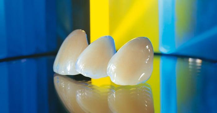 La céramo métal : d'une dent simple vers une dent plus élaborée