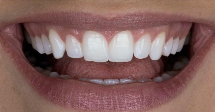 Moderne Methoden der Zahnaufhellung – sicher und effektiv