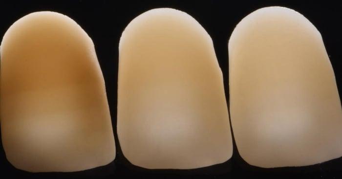 ¿Cómo se puede manejar la dentina pigmentada para las restauraciones directas e indirectas?