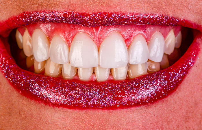 How to Get More by Doing Less—the Wow Factor of Minimal Preparation of IPS e.max Veneers