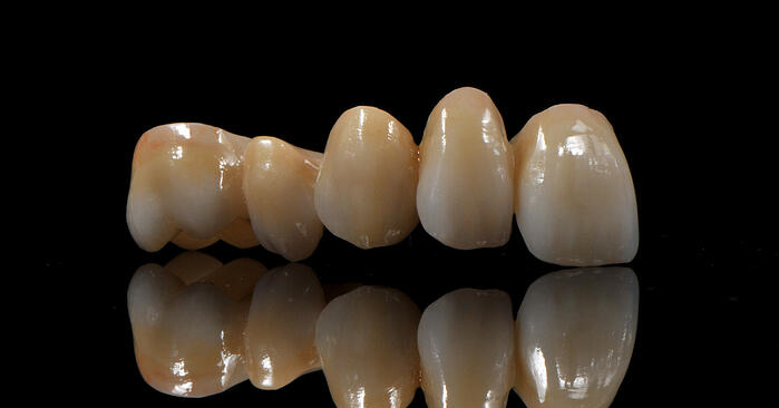 All Ceramic Options in Dentistry