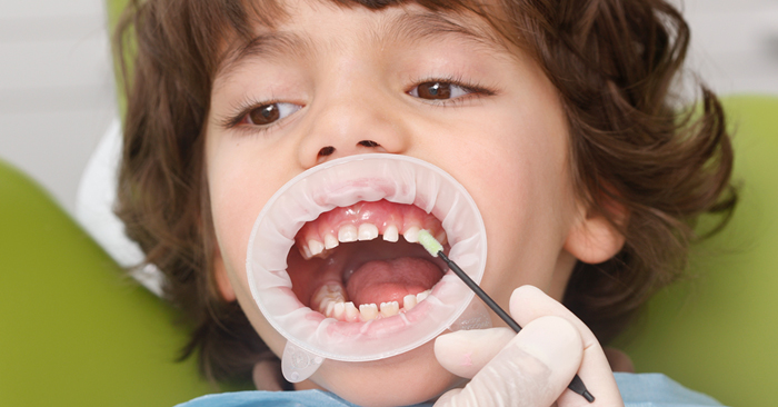 Controlled protection for milk teeth with Fluoride Varnish