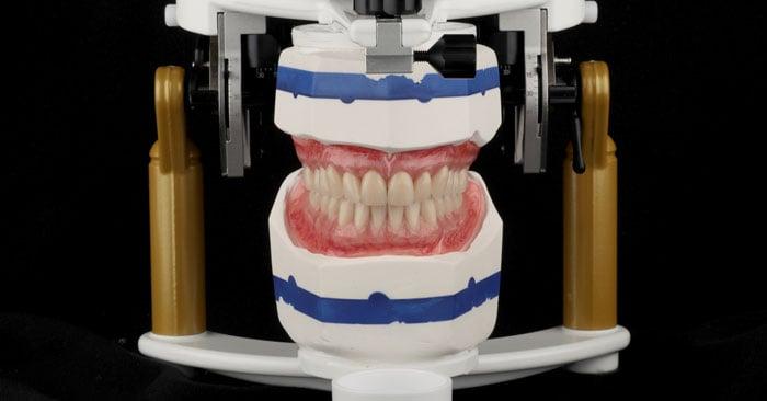 Denti su impianti preconfezionati per tutti i casi clinici