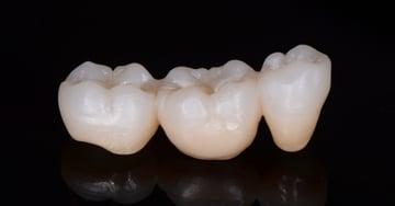 Nueva generación de cerámica sin metal a prueba en la clínica