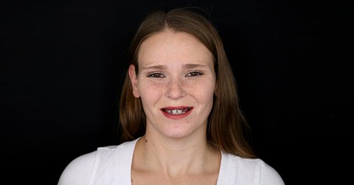 Una sonrisa que cambia la vida con Digital Denture - Primera parte