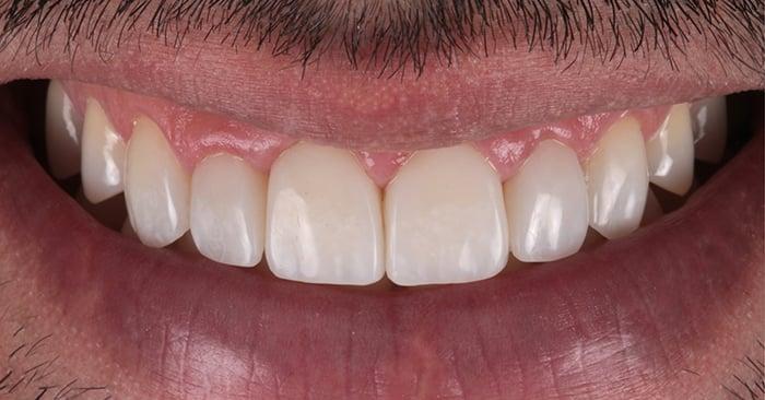 Caso clínico: Estratificação avançada e simplificada na região estética anterior superior