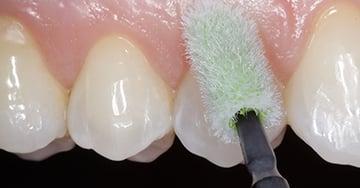 Caso clínico - Hipersensibilidade dentinária e prevenção da desmineralização.