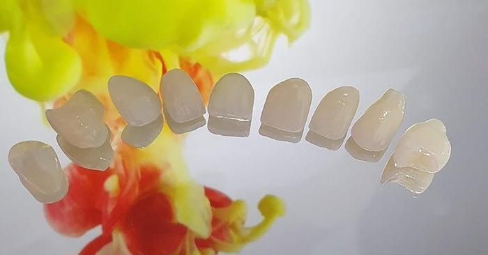 Caso Clínico - Ajuste de cor e troca de prótese parcial na região anterior