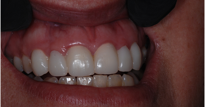 Healing Power: Cervitec Plus helps idealize gingival tissue health before and after treatment.