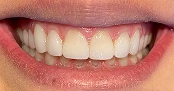 Caso Clínico - Facetas com Tetric N-Ceram Bleach L para correção de amelogênese imperfeita - Dr. Rafael Pazinatto
