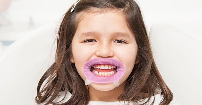 Caso clínico - Restauração de molares decíduos inferiores com lesões de cárie - Dr. Júlio Bassi