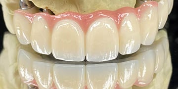 IPS e.max ZirCAD Prime brings back the artistry in full-contour zirconia