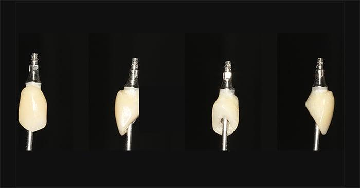Caso Clínico: Mascaramento do pilar metálico em prótese temporária sobre implante - Dr. Ney Pacheco