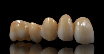 The amazing capabilities of zirconia