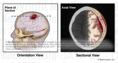 cross-section plane of brain hematoma