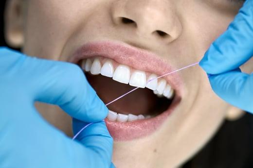 Dental Teeth Cleaning