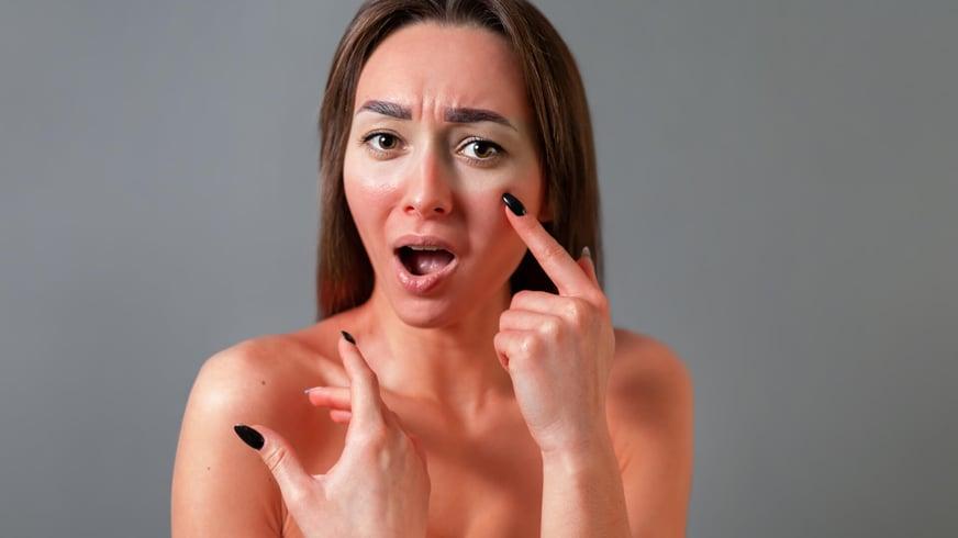 Maquillaje para tapar quemaduras en la cara: ¿Se puede hacer sin irritar más la piel?