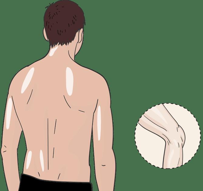 Illsutration eines Mannes, zeigt welche Schmerzpunkte durch ThermaCare® Waermepflaster und Umschlaege behandelt werden koennen