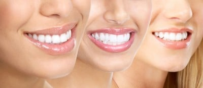 beautiful smiles dental care