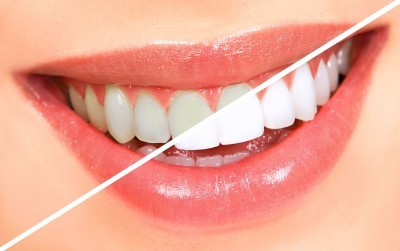 professional teeth whitening sugar land to lighten shade