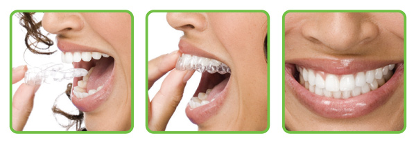 aligners for teeth