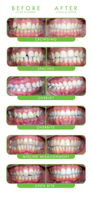 clear aligner therapy orthodontics