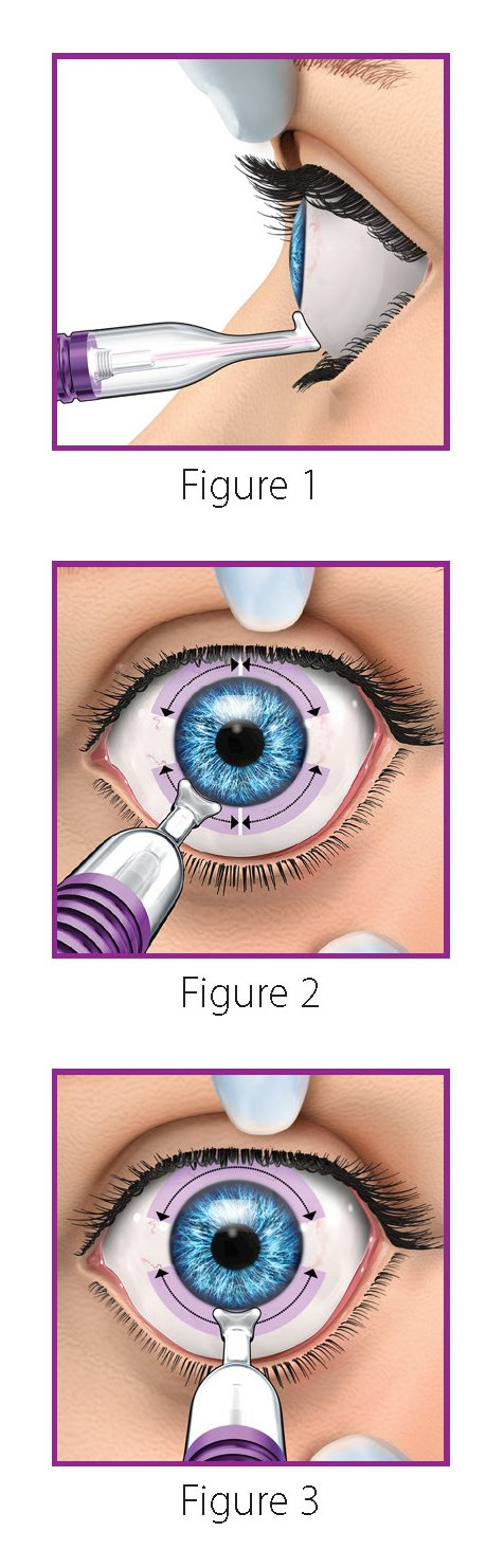 Placement of MicroPulse P3 Glaucoma Device