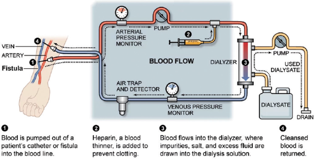 Temperature Monitoring in Hemodialysis | By Thermometrics