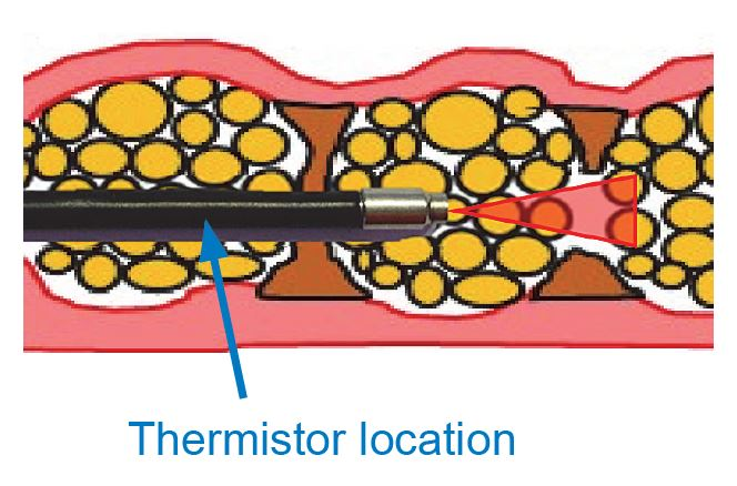 thermistor-cosmetic-laser-surgery
